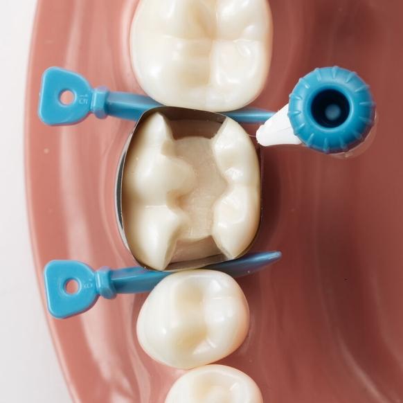Dentsply Sirona matrice